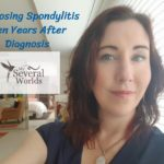Ten Years After Ankylosing Spondylitis Diagnosis
