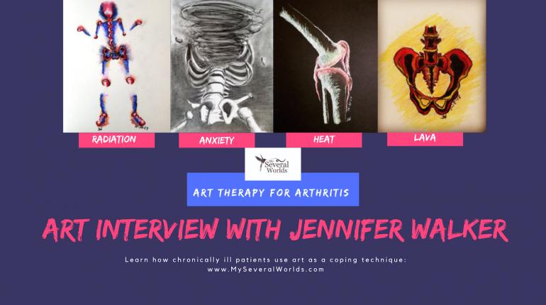 Art for Arthritis Interview
