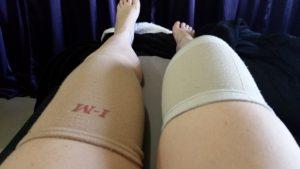 Compression wraps for arthritis.